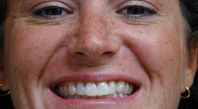 Cosmetic Dentist Teeth Whitening Zoom After